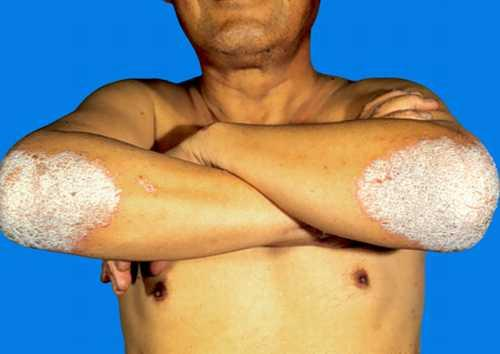双臂银屑病的发病诱因