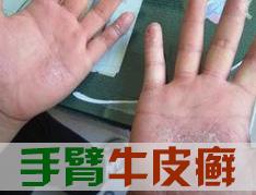手部bwin app该怎么护理
